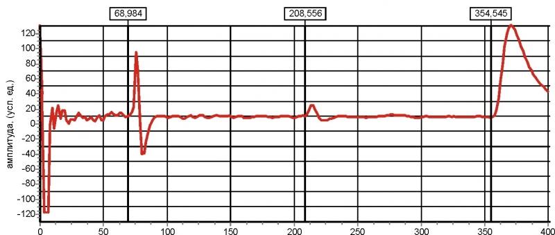 Рис. 16 Рефлектограмма КЛ с одной дефектной и одной исправная муфтой